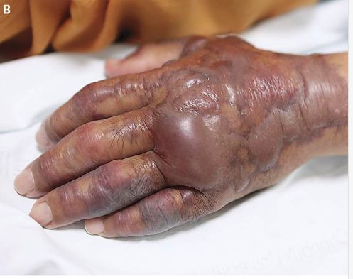 A South Korean mans left hand had to be amputated after it became infected from a bacteria he contracted after eating raw sus