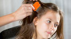 Kopfläuse: So behandelt ihr euer Kind