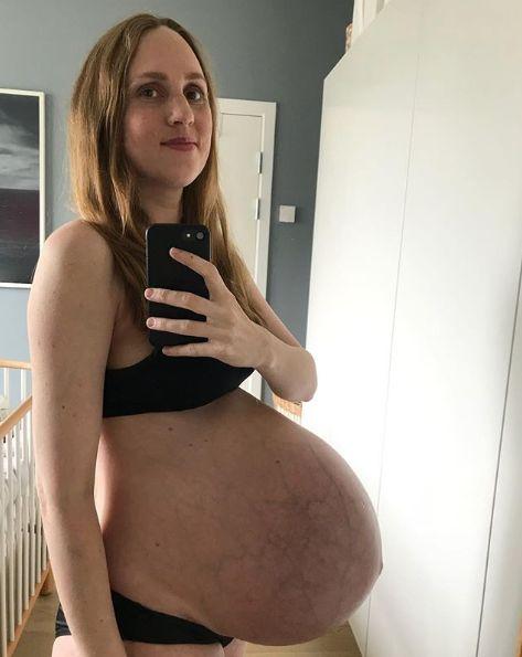 Enceinte de triplés, son ventre est sur le point