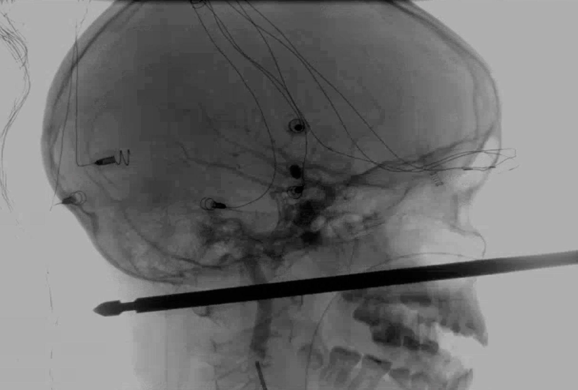 'Miraculous': Missouri boy survives after meat skewer pierces skull