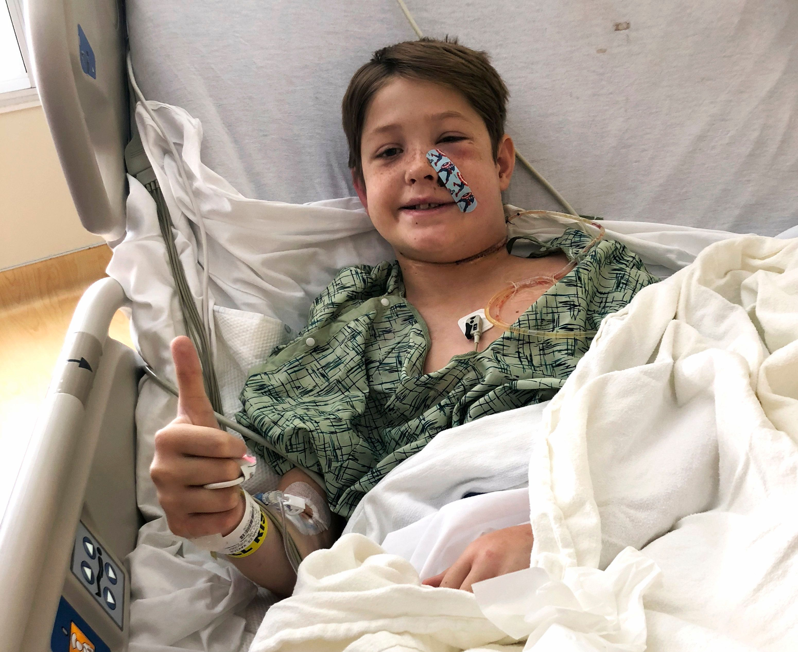 Boy survives after skewer pierces his skull, front to back
