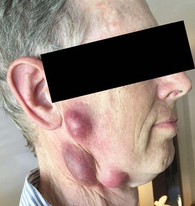 ΗΠΑ: Άνδρας προσβλήθηκε από σπάνια ασθένεια που του μετέδωσε η γάτα