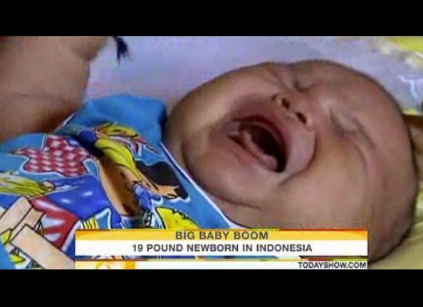 "Akbar, born in October 2009, set the record for heaviest baby born in Indonesia. <a href=""http://today.msnbc.msn.com/id/32999"
