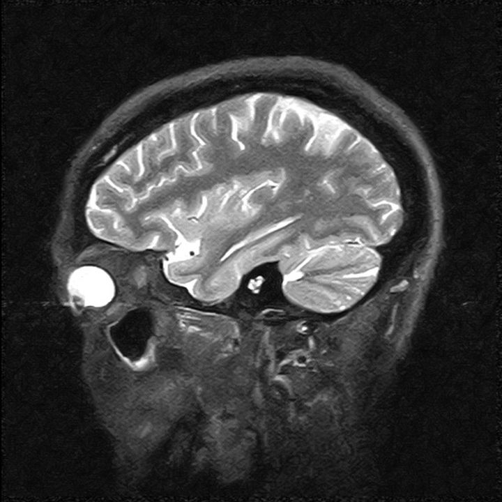 magnetic resonance image of the ...