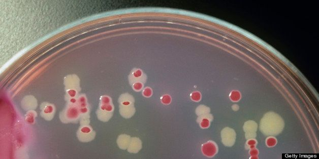Salmonella typhimurium (white) and E. coli (pink) colonies on agar in a petri dish, with a pencil for scale.