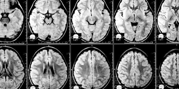 x ray image of the brain...