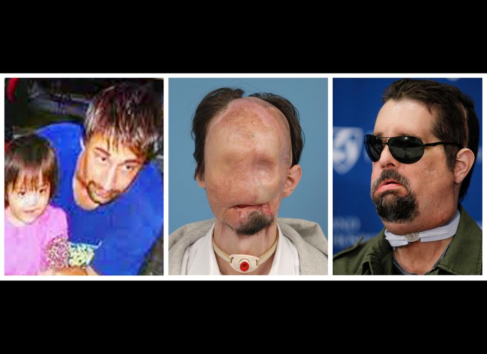 This three-photo combination shows Dallas Wiens, the recipient of the first full face transplant in the United States. On the
