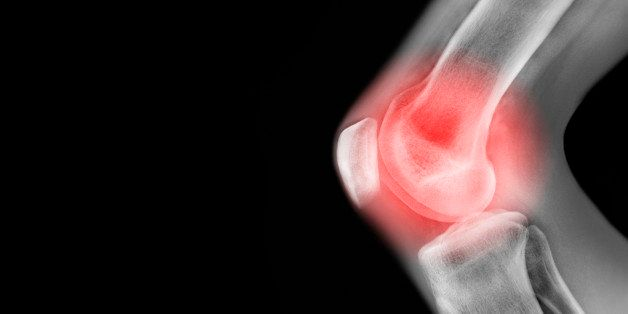 The Worst Sports Injuries (And How To Avoid Them) | HuffPost Life