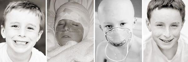 Our son Sam was diagnosed with medulloblastoma in 2009. Full resection of brain tumor, six weeks of radiation, 52 weeks of ch