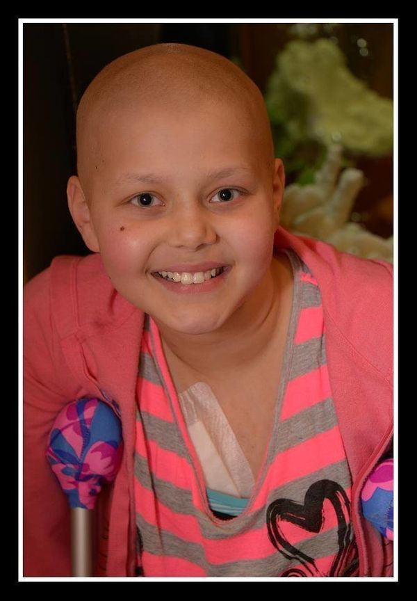 Our daughter Nicole (then 11 on January 25, 2012) complained of knee pain off and on for about month and was diagnosed with o