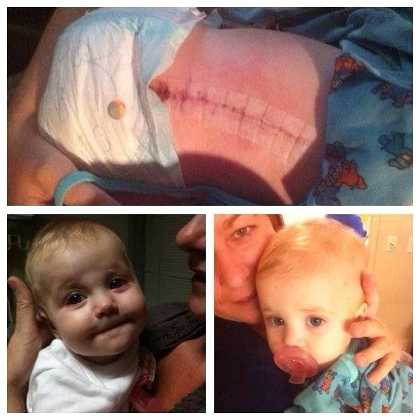 My daughter Ella was diagnosed with stage 3 neuroblastoma at 7 months old. <em><strong>She is stable now at 3 years old</stro