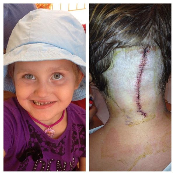 My daughter Natalija was diagnosed almost two years ago at the age of 3 with a brainstem tumor. She did 18 months of chemo an