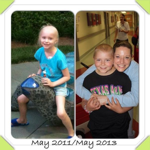 My daughter, Danielle, was diagnosed with high-risk acute lymphoblastic leukemia on January 15, 2011. The first picture is du