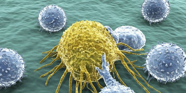 6 Causes Of Cancer That Can Be Prevented