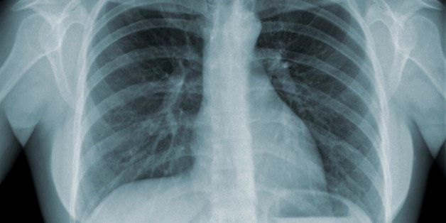 Detail of an x-ray of lungs on black background