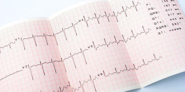 electrocardiogram  waveform...