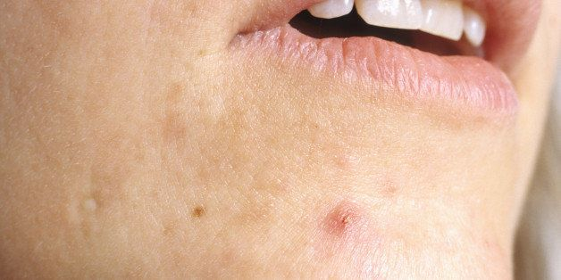 Everything You Ever Wanted To Know About Cystic Acne Huffpost Life