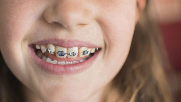 20 Mistakes You're Making With Your Teeth | HuffPost Life
