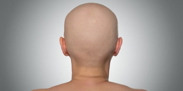 bald head  rear view. file...