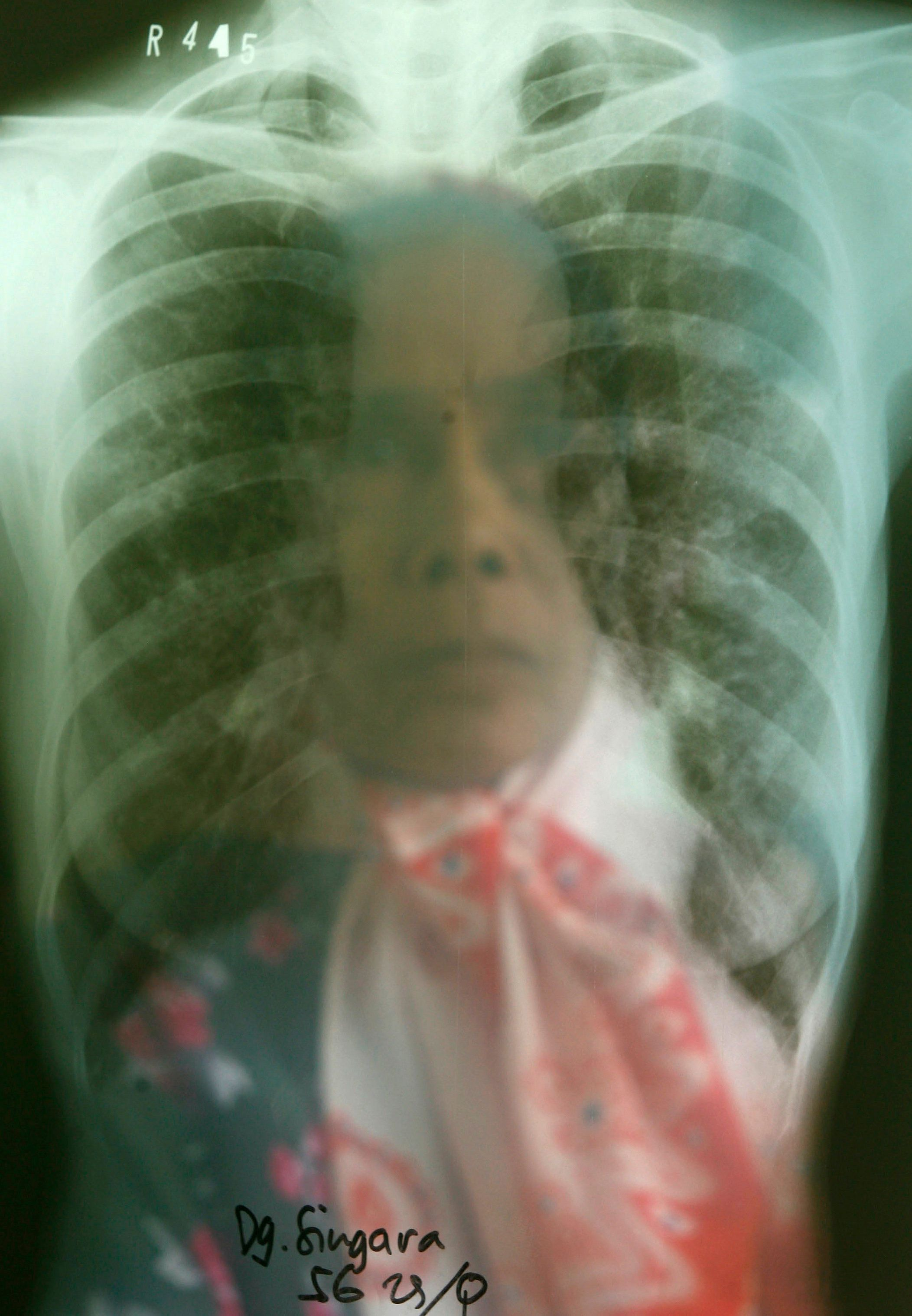 Tuberculosis Remains World's Top Infectious Killer, But A Turning Point May Be Near
