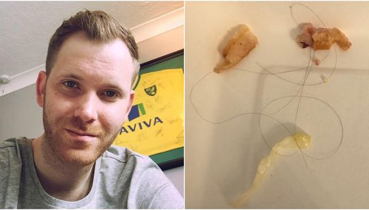 Deliveroo Tells Customer Thick Hairs Found In His Food Are 'Matter Of Personal