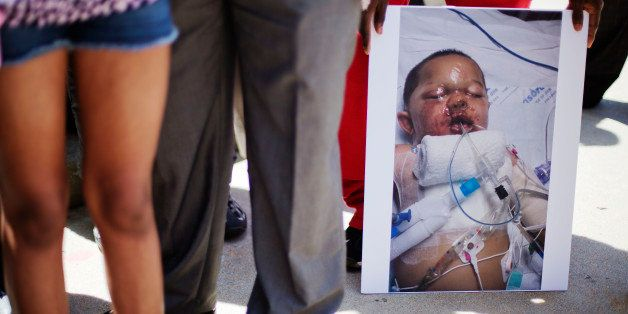 A photo of 19-month-old Bounkham Phonesavanh who was severely burned by a flash grenade during a SWAT drug raid, is held by a