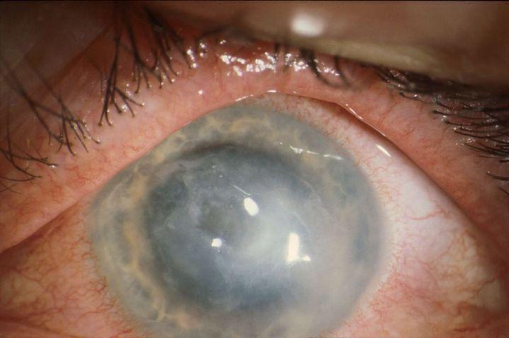 A severe case of the eye infectionAcanthamoeba keratitis.