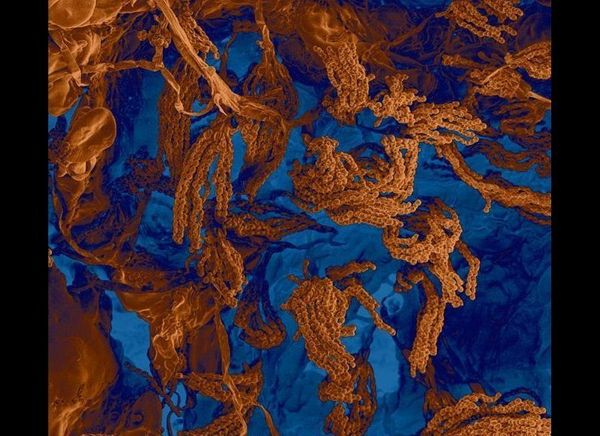 "Penicillium Fungus of Bread <a href=""http://www.fei.com/resources/image-gallery/Bread-Mould.aspx"">FEI</a>"