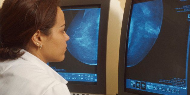 Photo Essay From Hospital. Digital Mammography. Mammography Unit Of The Gustave Roussy Institute, In The French Region Of Ile