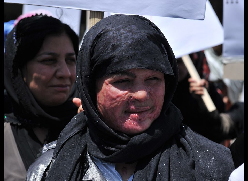 An Afghan woman, her face scarred from an acid attack, marches with other demonstrators to protest the recent public executio