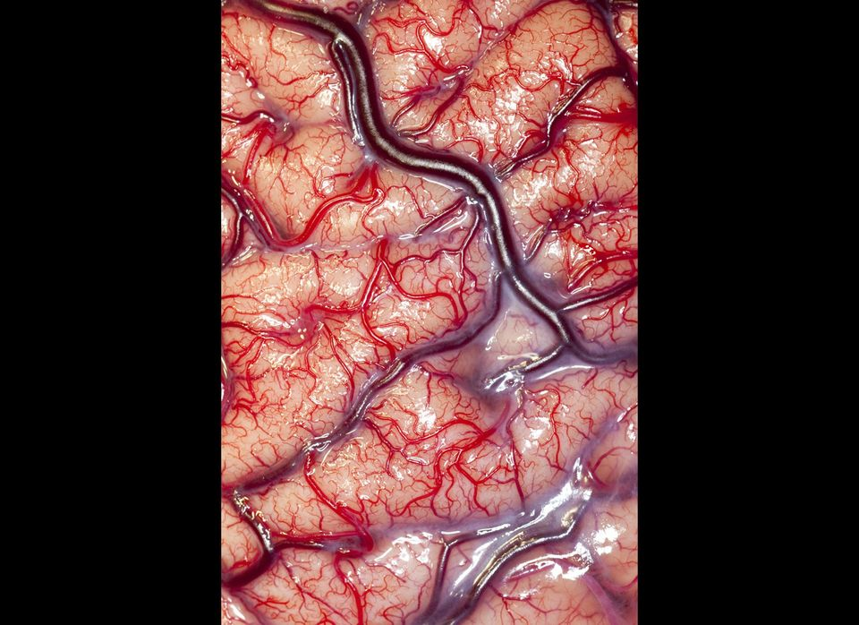 This photograph shows the surface (cortex) of a human brain belonging to an epileptic patient, displaying the arteries and ve