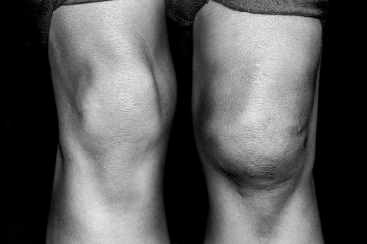 Torn Medial Patellae resulting from a knee dislocation (focus is on the kneecaps)