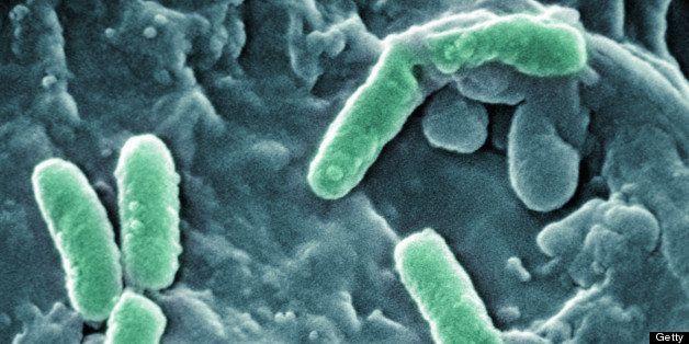 Scanning Electron Micrograph of Pseudomonas aeruginosa bacteria