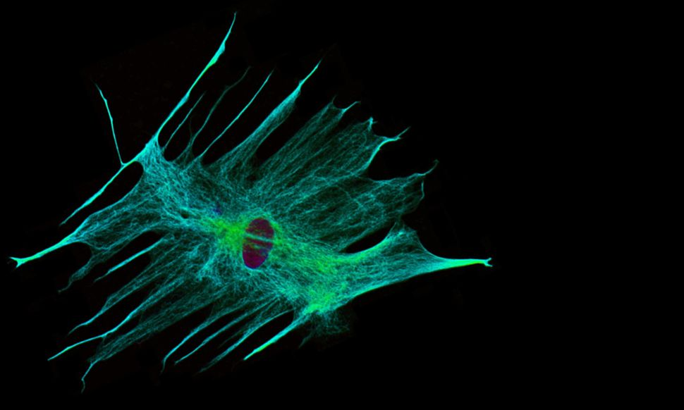"These star-shaped cells, or ""astrocytes,"" were once thought to be simple support cells for neurons.  Now we know that they ar"