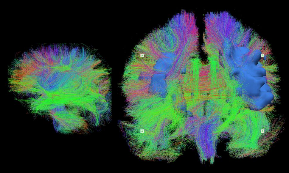 This is a detailed map of the brain wiring in a sleeping newborn baby (left) and an adult in their seventies (right), visuali