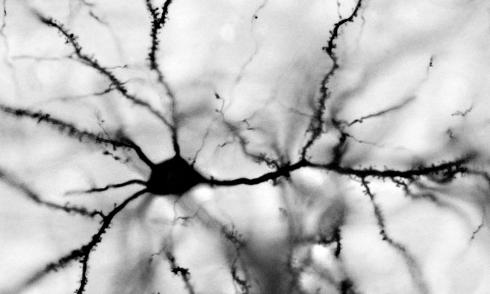 Neurons have branched projections that extend from their cell body called dendrites which give the cells a tree-like appearan
