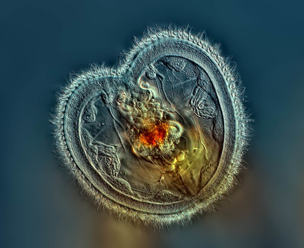 1st Place: Mr. Rogelio Moreno Panama, Panama. Rotifer showing the mouth interior and heart shaped corona. Differential Interf