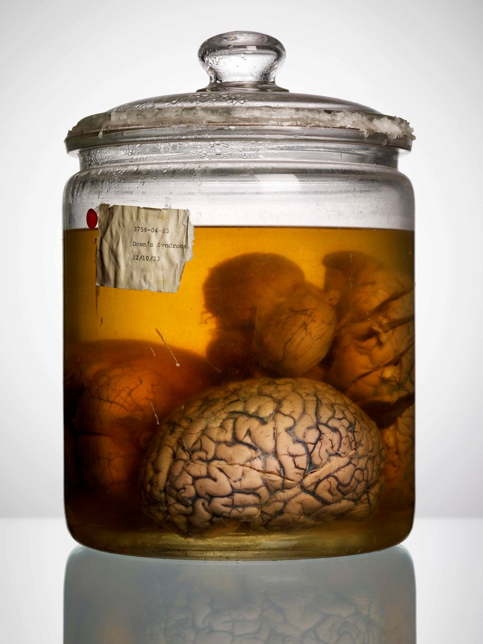 "<a href=""http://www.powerhousebooks.com/?p=18376"">Malformed: Forgotten Brains of the Texas State Mental Hospital</a> by Adam"