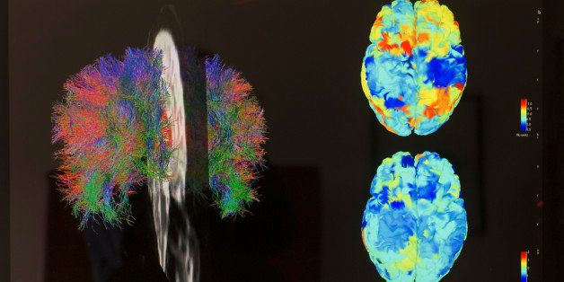 TORONTO - APRIL 25 - White matter fibre tracts (left) and  fMRI images of reporter Jennifer Wells's brain on April 25, 2014.