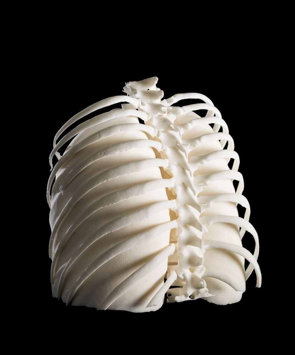 Lungs in ribcage, Hodgkin lymphoma patient, 3D-printed nylon.