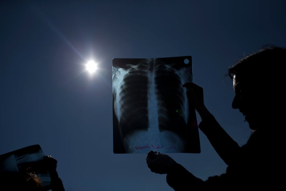 People use exposed X-ray films to observe the eclipse in Belgrade, Serbia.