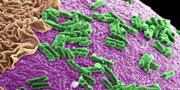 Can Bacteria In Your Gut Explain Your >> Can The Bacteria In Your Gut Explain Your Mood Huffpost