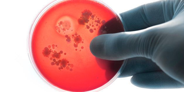Holding bacteria plate