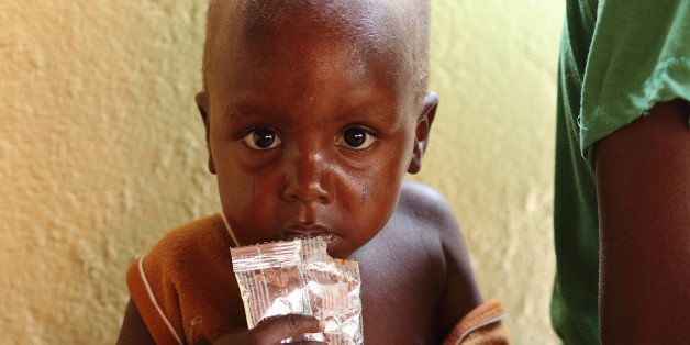 A malnourished child waits on March 21, 2012 at a hospital run by the French non-governmental organization Action Against Hun
