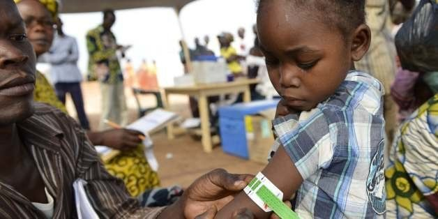 A man measures a child's arm circumference in a makeshift field clinic of the Doctors Without Borders (MSF) organisation duri