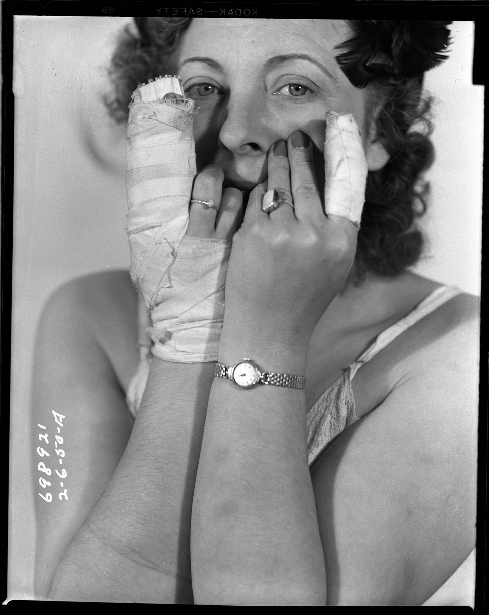 Female assault victim exposes bruising and bandaged fingers. Date: 2/6/1950