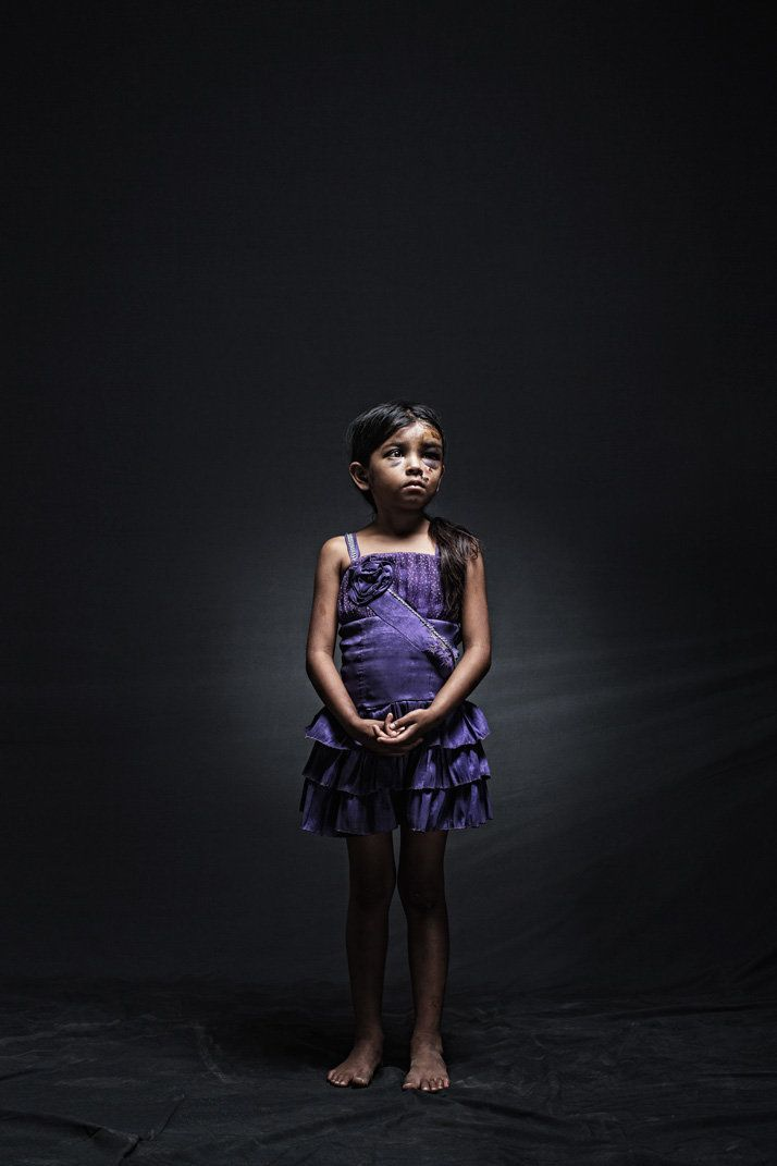 """Yenifer, eight, Guatemala. She suffered, along with her 12-year-old sister and 11 other migrants, an automobile accident in"