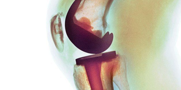 Knee replacement. Coloured X-ray of a total knee replacement in a 70 year old man.