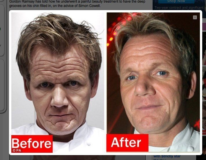 Gordon Ramsay Takes Simon Cowell's Advice, Gets Fillers In