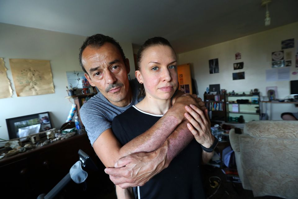 Daz Long and Becca Kirkpatrick are both concerned their flat is so mouldy it might be affecting their health.